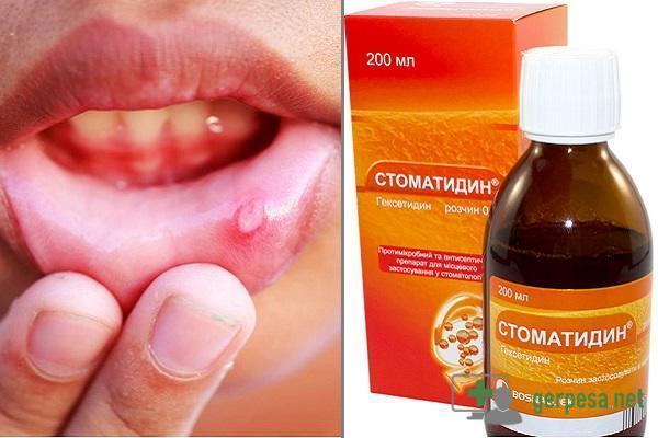 Герпес внутри губы: как лечить простуду и причины появления