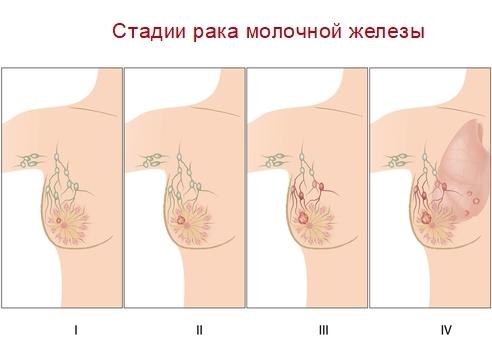 Инвазивный рак молочной железы (неспецифического типа, протоковый, дольковый)