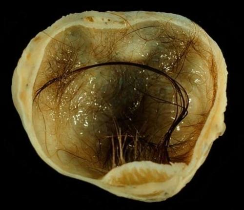 Как проводится узи яичников у женщин. Подготовка, расшифровка результатов