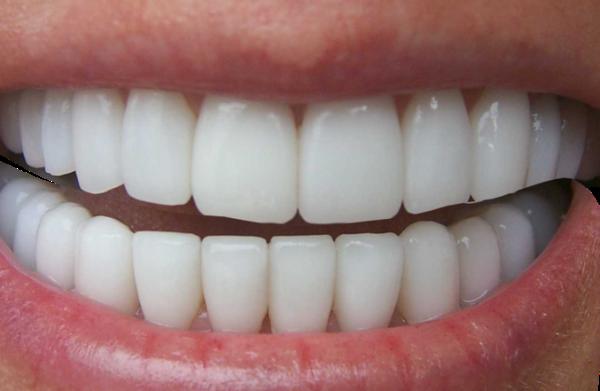 Кривая челюсть: этиология, диагностика, методы исправления, прогноз