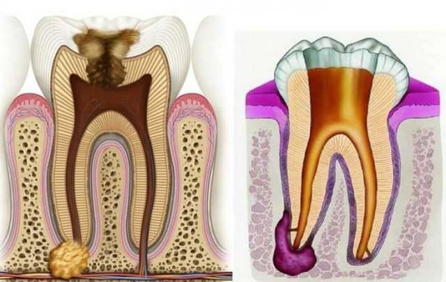 Гранулема зуба лечение лазером, антибиотиками, народными средствами и другими методами