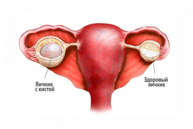 Киста яичника: мкб 10, классификация и лечение