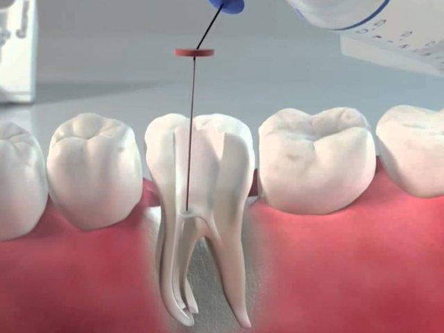 Пломбирование корневых каналов – основной этап эндодонтического лечения