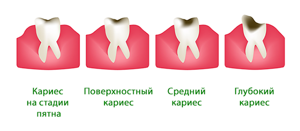 Профилактика болезней зубов – стоматологические средства, уход за полостью рта
