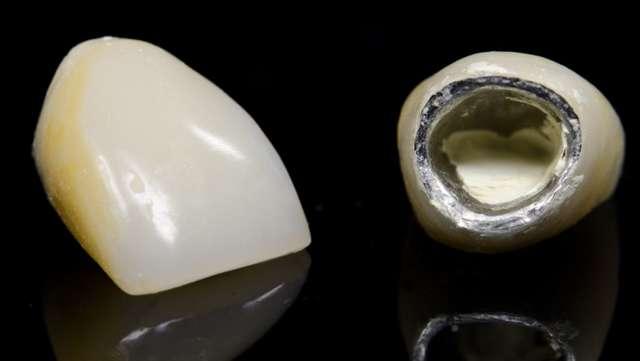 Что собой представляют металлопластмассовые коронки: особенности изготовления и установки