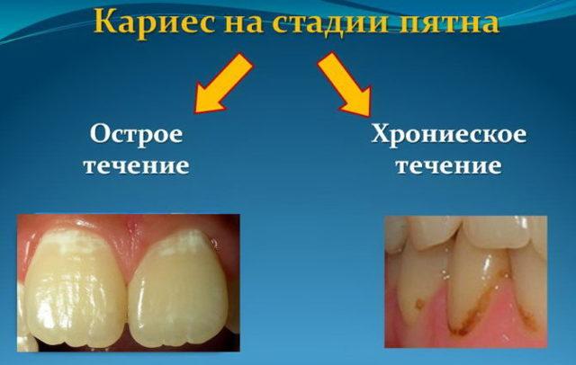 Кариес зубов: причины возникновения, что способствует развитию, кариесогенные бактерии
