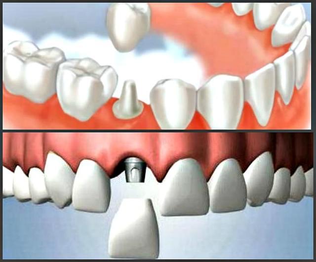 Пластмассовые коронки на передние зубы: отзывы, виды, изготовление и установка