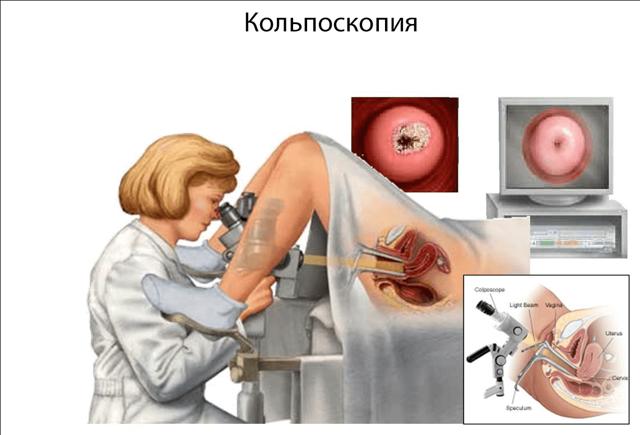 Расширенная кольпоскопия шейки матки: что это такое и как делают