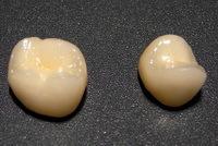 Виды зубных протезов: классификация протезирования, плюсы и минусы искусственных зубов