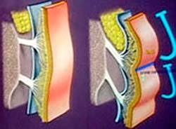 Роль подкожных жировых пакетов лица в процессах старения и способы коррекции
