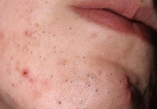 Черная точка на губе: причины возникновения и методы избавления