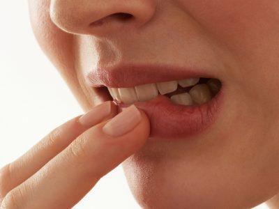 Пузырьки во рту, причины кровяных шариков на щеке или небе