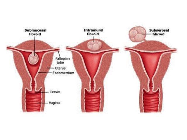 Миома матки: лечение без операции медикаментозными средствами и другими способами