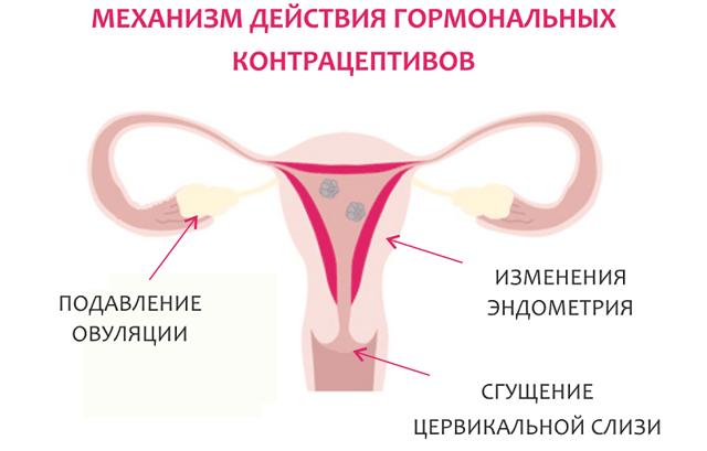 Коричневые выделения за неделю до месячных: возможна ли беремемнность?