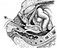 Секс-травмы, о которых не говорят: повреждения шейки матки