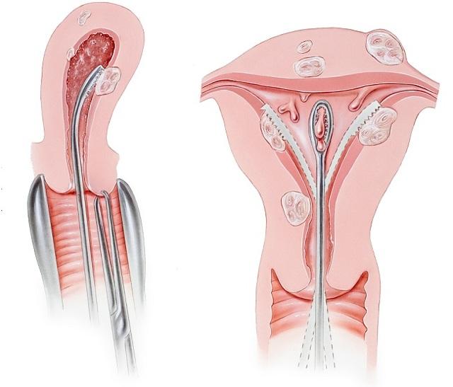 Эктропион шейки матки - что то такое и как лечить