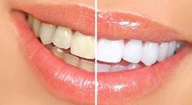 Люминиры: фото «до и после», показания к установке, отзывы, преимущества