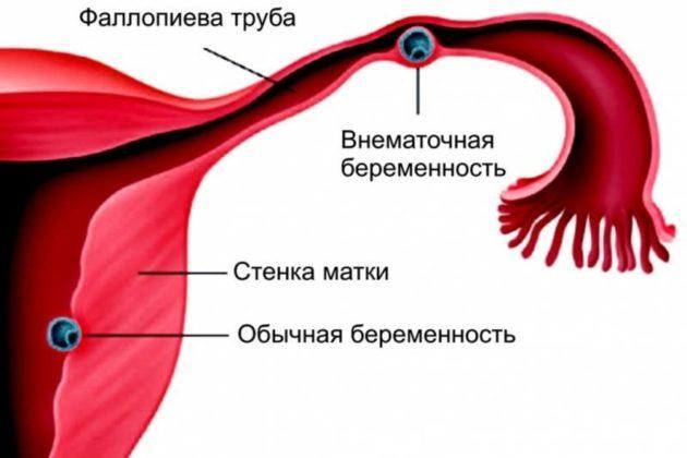 Коричневые выделения в середине цикла: причины появления бурой, кровянистой мазни