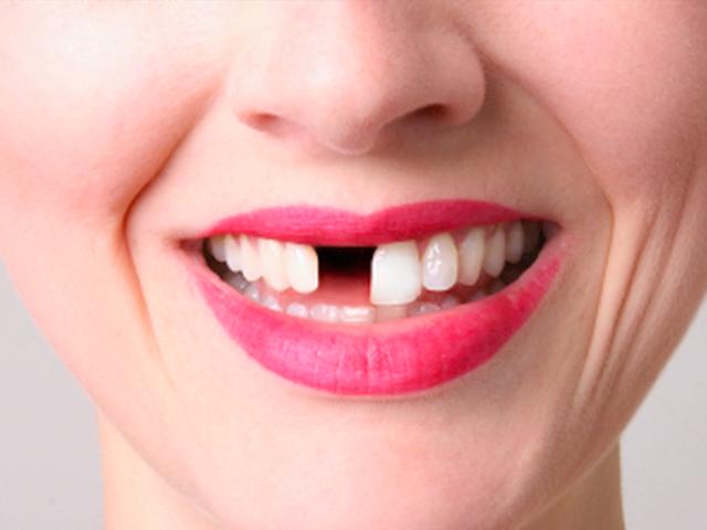 Приметы про зубы. Что будет если откололся, сломался, болит, выпал