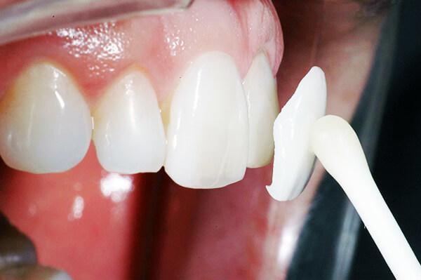 Люминиры: фото до и после установки, отзывы пациентов, особенности
