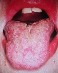Хронический рецидивирующий афтозный стоматит (храс) – лечение, причины возникновения, симптомы