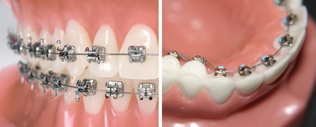 Окклюзия зубов: виды, диагностика, методы лечения проблем прикуса