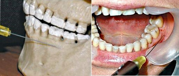 Инфильтрационная анестезия в стоматологии: виды, особенности, техника проведения