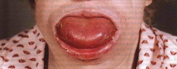Макроглоссия – причины увеличения языка и последствия аномалии