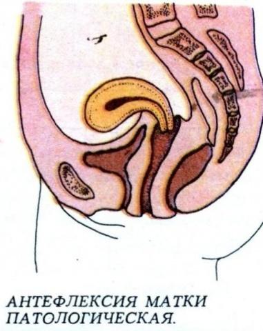 Положение матки anteflexio — причины, диагностика и последствия