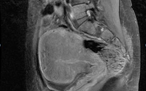 Мрт при эндометриозе: можно ли увидеть на диагностике
