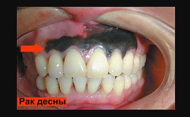 Рак десны: фото начальной стадии, симптомы и признаки, прогнозы болезни