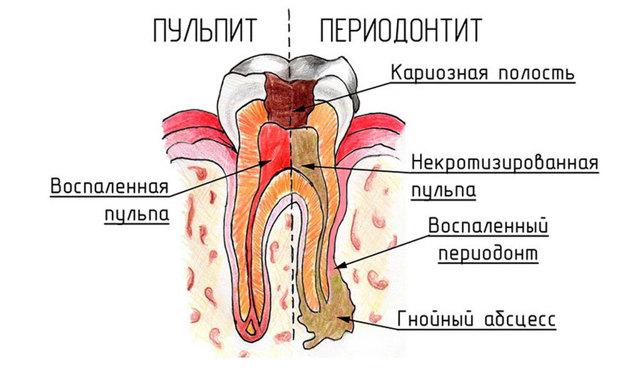 Хронический пульпит, его виды и отличие от острого, методы лечения