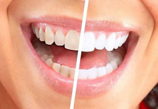 Отбеливание зубов перекисью водорода: отзывы, рецепты, меры предосторожности