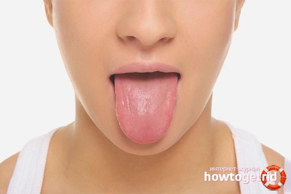 Язвы на языке: топ методов лечения в домашних условиях