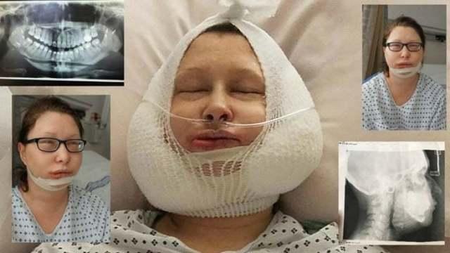 Остеотомия носа — показания, подготовка и проведение операции, реабилитация