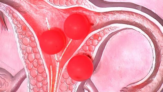 Кровотечение после выскабливания: норма и патология, причины и методы лечения