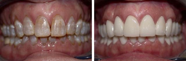 Эрозия эмали зубов: причины возникновения и профилактика болезни