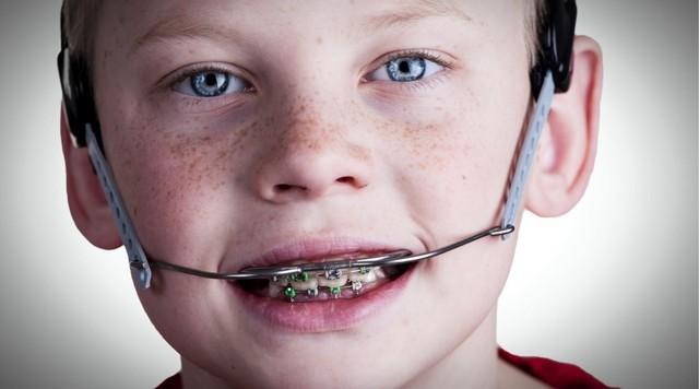 Лицевая дуга в стоматологии: описание, особенности применения, виды и отзывы
