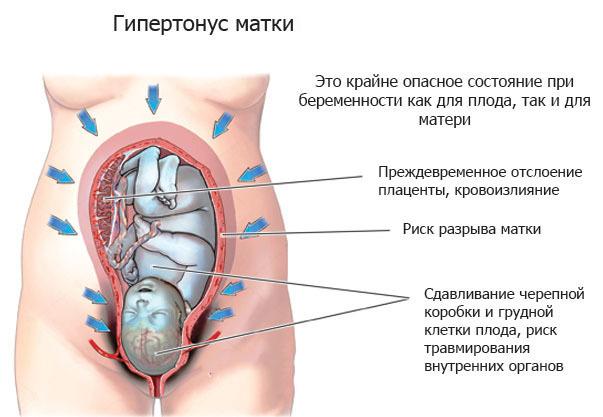 Матка при беременности твердая и мягкая, плотная