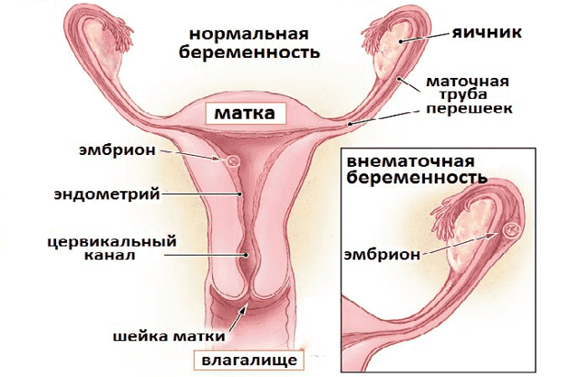 Гипоэхогенное образование в яичниках что это такое и как лечить