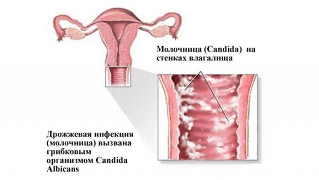 Как определить молочницу у женщин: какие симптомы наблюдаются?