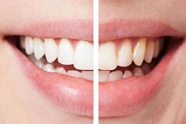 Отбеливание зубов в брекетах и после их снятия