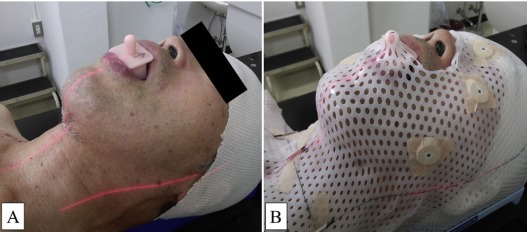 Рак верхней челюсти - причины, симптомы, диагностика и лечение, прогноз