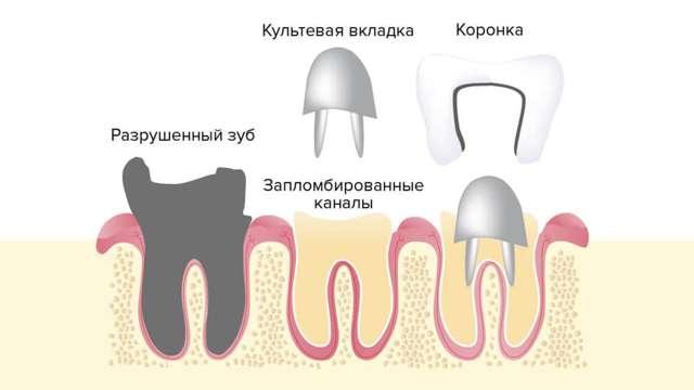 Протезирование зубов без обточки: виды процедуры без обтачивания соседних единиц