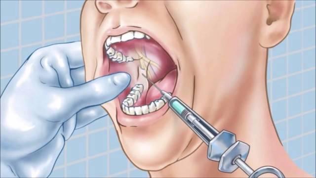 Карпульная анестезия в стоматологии что это такое и как проводится