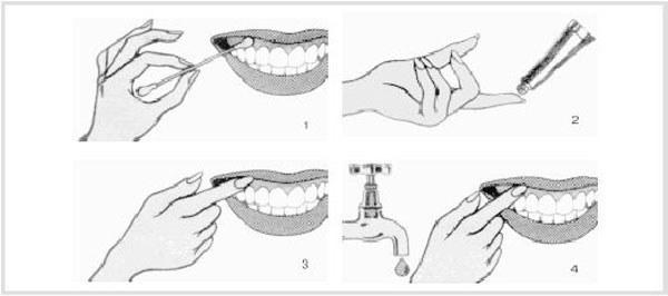 Гель стоматологический для десен и зубов солкосерил: инструкция, аналоги, отзывы