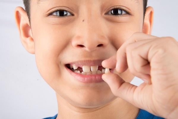Выпадение молочных зубов – какие молочные зубы выпадают первыми