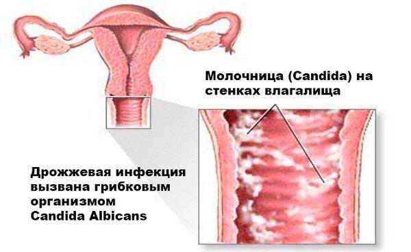 Молочница при грудном вскармливании: чем лечить, признаки болезни