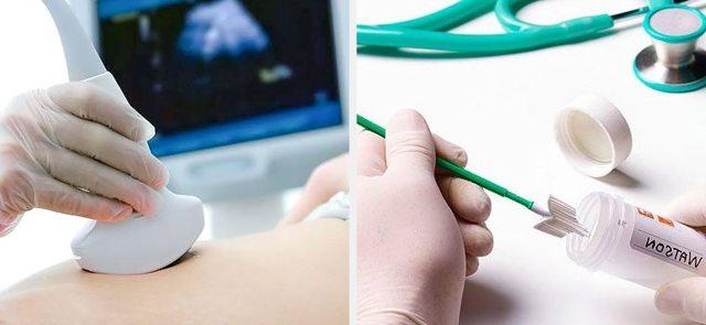 Кольпит при беременности: симптомы, причины, последствия для ребенка