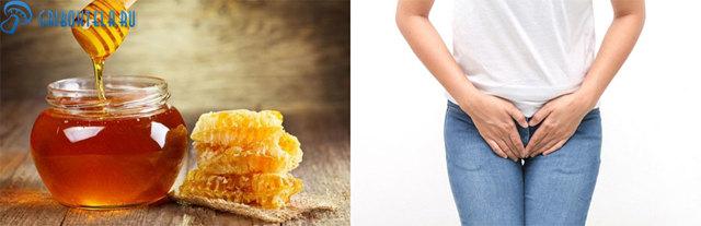 Лечение молочницы медом у женщин и грудных детей